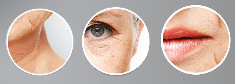 Problem med hängande överskottshud i ansiktet? Varför händer det? Hur tar jag bort huden? 14 tips för att förnya slapp och hängig hud